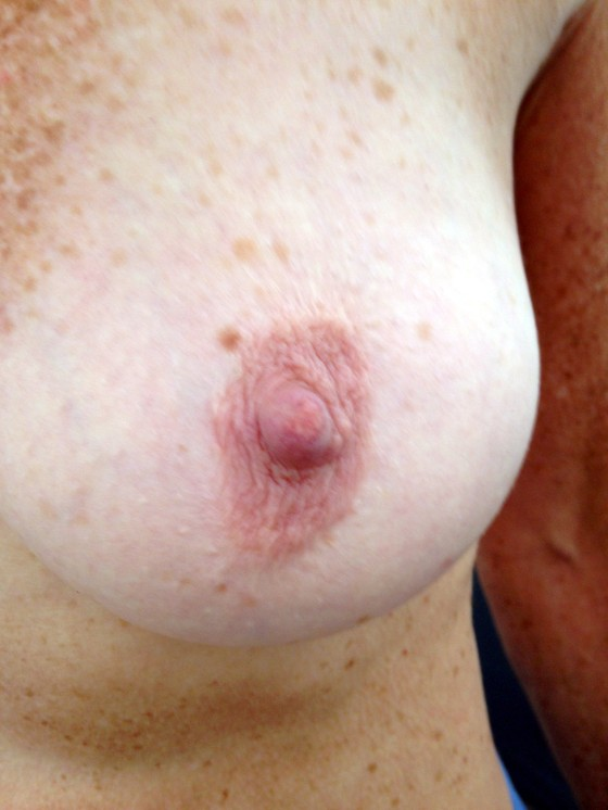 anonymous_freckles_aug292013