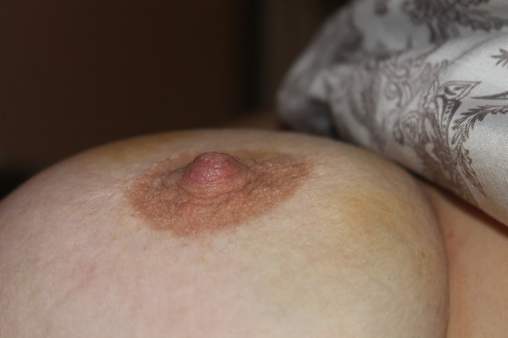 kayla_breast_bruise_curves